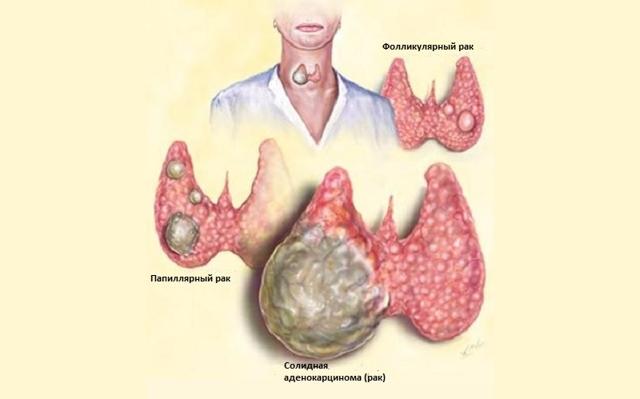Рак щитовидной железы: причины, симптомы, как выглядит, лечение заболевания