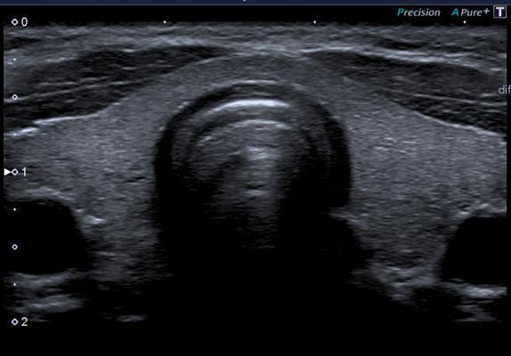 УЗИ щитовидной железы: подготовка, норма, у женщин, расшифровка
