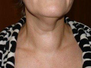 Эутиреоз щитовидной железы: что это такое, симптомы, лечение, питание, степени