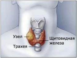 Виды узлов на щитовидной железе
