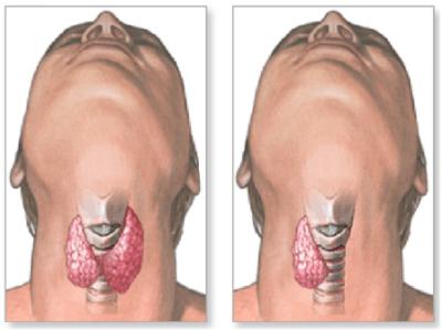 Тиреоглобулин (ТГ): функции и показания (норма, повышен, понижен)