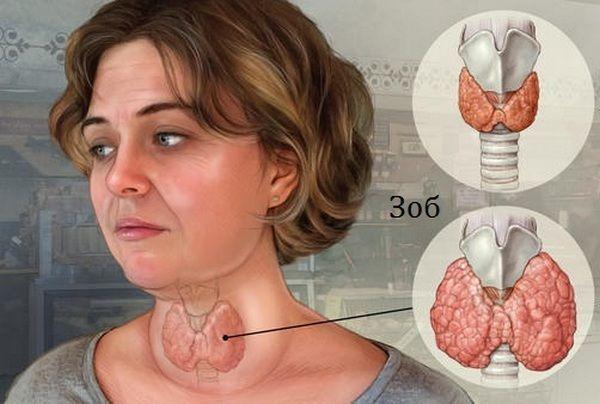 Неоднородная структура щитовидной железы: что такое, причины, лечение