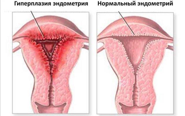 Типы гиперплазии