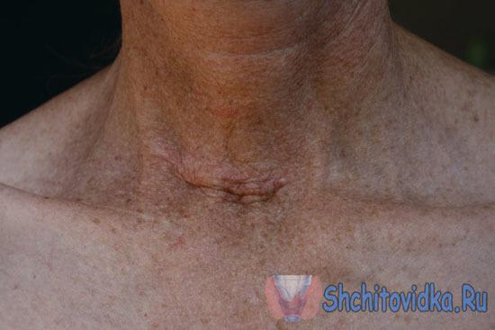 Йодотерапия после удаления щитовидной железы