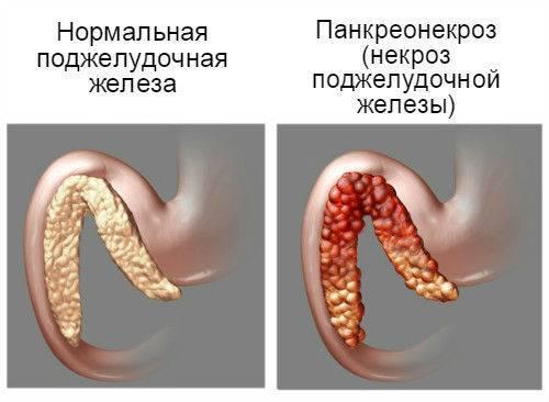 Острый геморрагический панкреонекроз - причины