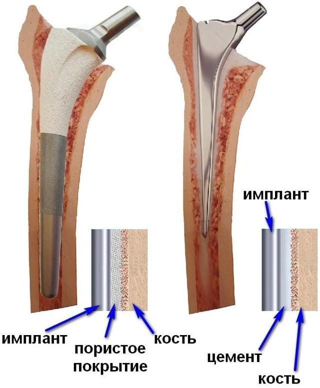 Остеопороз тазобедренного сустава: симптомы, степени, боли, диффузный, лечение у женщин, гимнастика, диета, эндопротезирование и замена