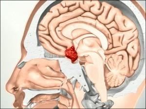 Микроаденома гипофиза у мужчин: причины, симптомы, лечение и прогноз