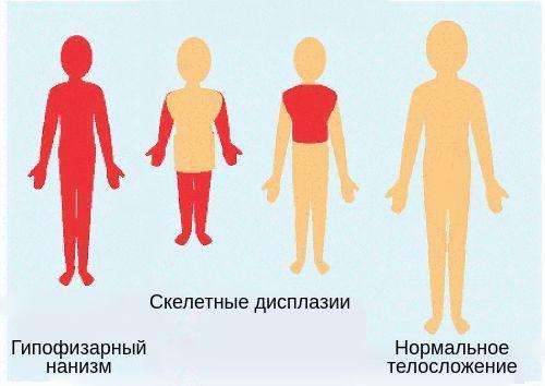 Гипоплазия гипофиза: причины уменьшения у детей