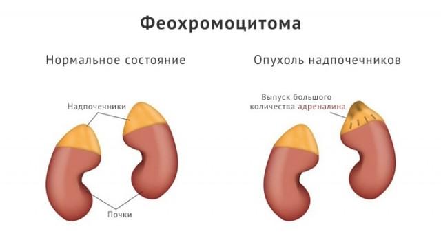 КТ надпочечников, почек: что показывает, подготовка, как делают с контрастом, КТ или МРТ, образования органов
