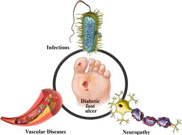 Диабетическая стопа: признаки, симптомы начальной стадии, синдром
