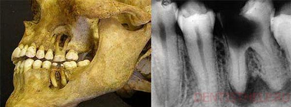 Остеопороз челюсти: истончение костей в стоматологии, симптомы разрушения, имплантация зубов