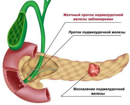 УЗИ поджелудочной железы: как подготовиться, норма у взрослого в размерах, УЗИ эхогенность, отклонения - признаки диффузных изменений, рак, панкреатит, опухоль, уплотнение, киста, при диабете