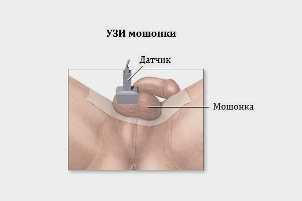 УЗИ яичек у мужчин, простаты: подготовка, что показывает, как делают, норма и размеры, кальцинаты в яичках