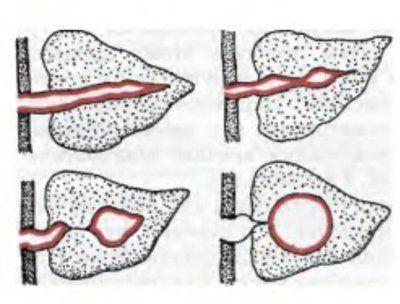 Дренирование кисты поджелудочной железы при панкреонекрозе