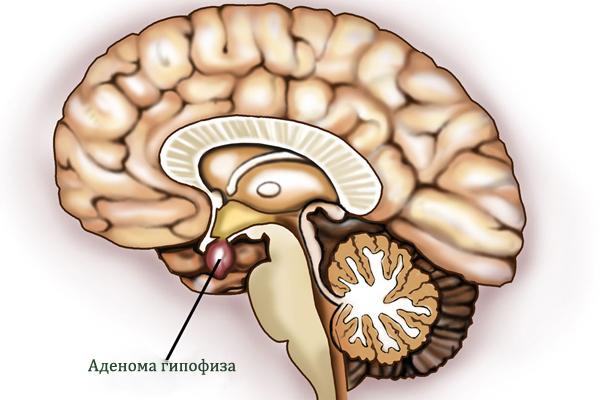 Пролактин при аденоме гипофиза: какой должен быть уровень, почему показатель повышен