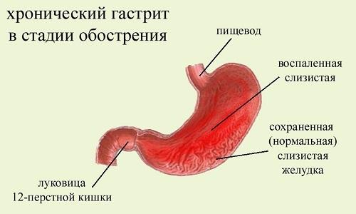 Финики при панкреатите поджелудочной железы: можно ли?