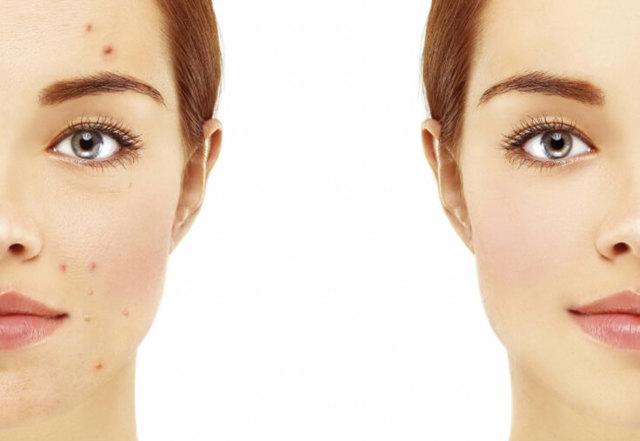 Анализы на гормоны при акне: какие сдавать у женщин и мужчин при прыщах