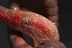 Календула при панкреатите: лечебные свойства