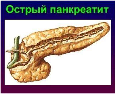 Острый панкреатит: причины, симптомы и лечение