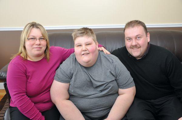 Синдром Прадера: причины у детей и взрослых, симптомы, диагностика, прогноз продолжительности жизни при синдроме Прадера-Вилли, инвалидность