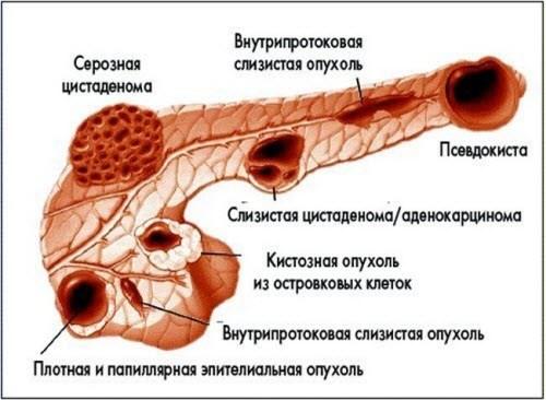 Что такое псевдокиста поджелудочной железы?
