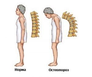 Диффузный остеопороз: признаки, степени проявления - выраженный, умеренный, лечение поражения костей