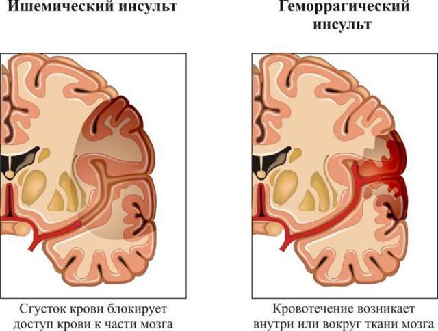 Хроническая надпочечниковая недостаточность: первичная у детей, симптомы, диагностика, осложнения, лечение