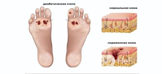 Диабетическая ангиопатия: основная классификация, симптомы периферических нижних конечностей, диагностика, лечение (хирургия, препараты)