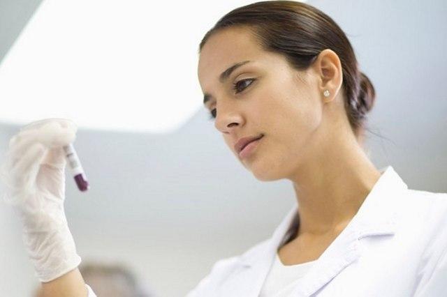 Фолликулостимулирующий гормон: норма у женщин и мужчин, за что отвечает, уровень при климаксе