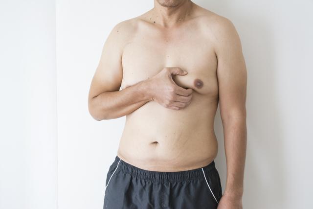 Гинекомастия у мужчин: основные причины, виды - истинная, ложная, односторонняя, узловая, симптомы, какой врач поможет, УЗИ, лечение без операции у пожилых и молодых в домашних условиях