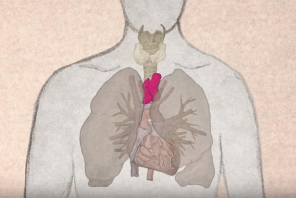 Рак вилочковой железы: основные симптомы у взрослых, выживаемость