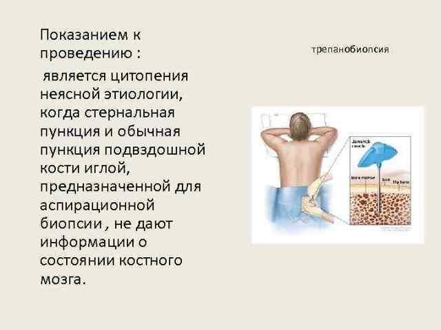 Биопсия кости: методы - открытая, трепан, как делается для подвздошной, бедренной, игла для анализа костей таза