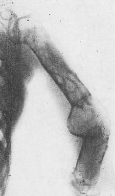 Паратиреоидная остеодистрофия, гиперпаратиреодная