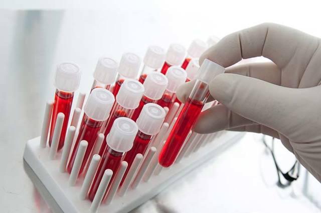 Анализы на гормоны ребенку: какие сдают, расшифровка, норма в показателях крови