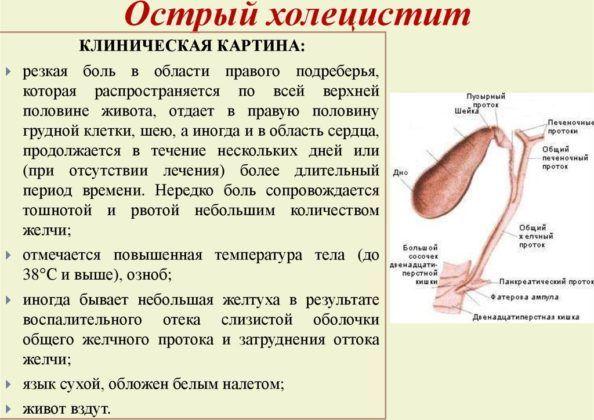 Калькулезный панкреатит - симптомы, причины, лечение, диагностика