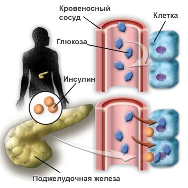 Востановление поджелудочной железы при панкреатите