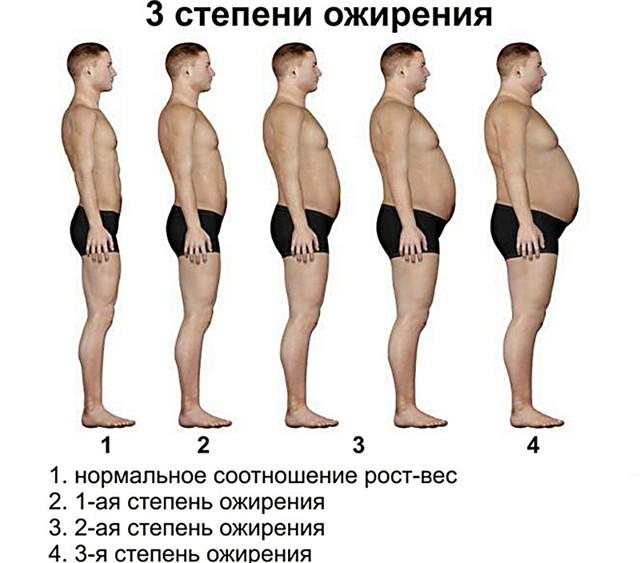 Типы ожирения у мужчин: причины избыточного веса, кому ставят абоминальный, по женскому типу, лечение