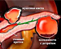 Киста и псевдокиста поджелудочной железы