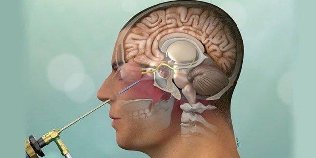 После удаления аденомы гипофиза: состояние после операции, восстановление, реабилитация, осложнения - потерял нюх, несахарный диабет, болит голова, МРТ, лечение
