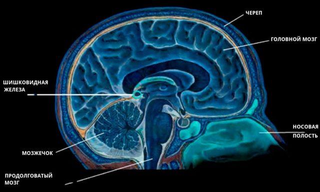 Киста эпифиза: признаки, виды - врожденная, простая, мелкая, ложная, размер, последствия у взрослого, ребенка с гидроцефалией, МРТ, лечение кисты шишковидной железы и удаление