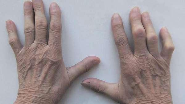 Остеопороз кистей рук, виды: диффузный, локальный, околосуставный, эпифизарный, симптомы, лечение