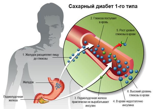 Диабет молодых: признаки, симптомы у молодых женщин, мужчин, поздний в возрасте сахарный диабет