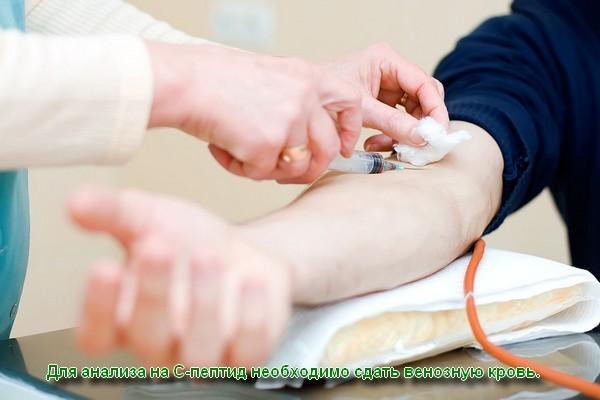 Анализ на С пептид: что это такое, что показывает в крови, как сдавать, расшифровка, норма при сахарном диабете