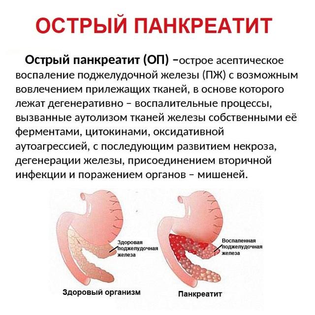 К какому врачу обращаться и кто лечит поджелудочную железу