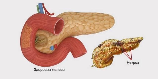Что такое некроз поджелудочной железы (симптомы)