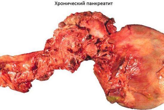 Лечение панкреатита народными средствами: самые эффективные
