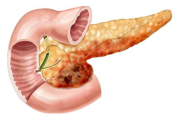Кровотечение при панкреатите