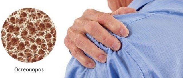 Остеопороз плечевого сустава: причины, симптомы - боли и прочие, как лечить, упражнения