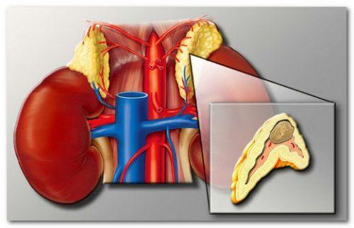 Аденома надпочечника: операция по удалению, восстановление после, последствия, можно ли вылечить без нее