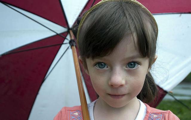 Синдром Сильвера: причины, симптомы, диагностика, лечение, сколько живут с синдромом Рассела-Сильвера